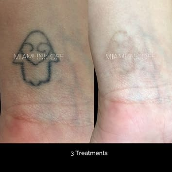 before & after tattoo removal Miami Ink Off 0008