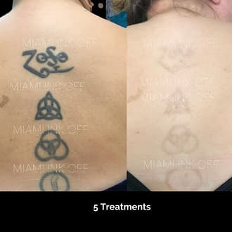 before & after tattoo removal Miami Ink Off 0002