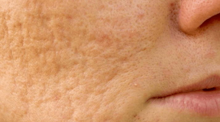a picture of a womans face with boxcar acne scars on the face and cheek.