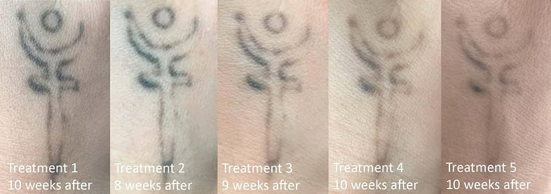 A Before and After image of a tattoo being partially removed using the PicoWay tattoo removal laser