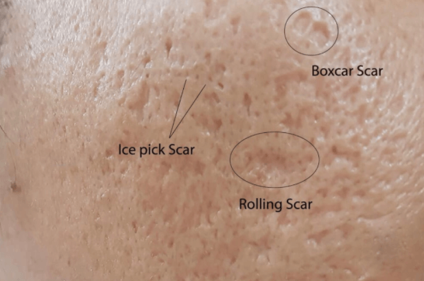 A picture of a persons face with the different types of atrophic scarring highlighted and marked up.