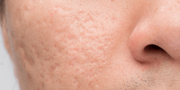 A picture of a mans face and cheek that has icepick scars