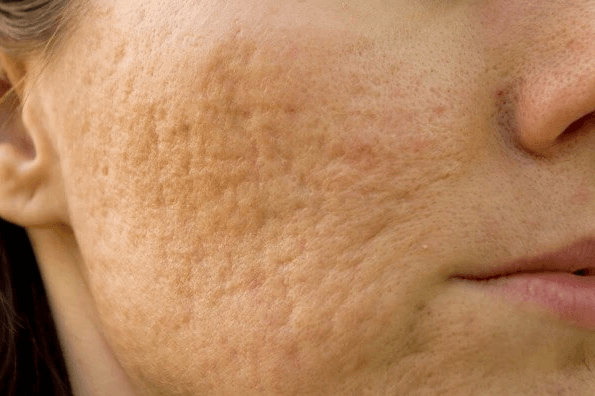A woman with rolling acne scars on her face and cheek
